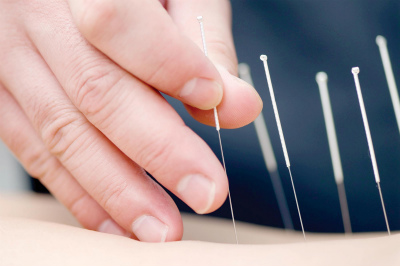 acupuncture (1)